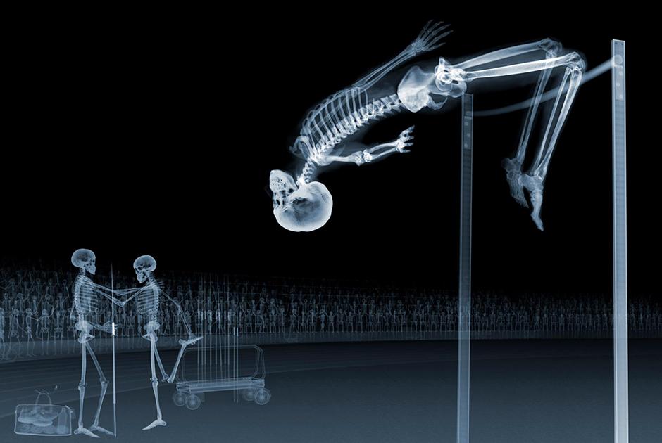 Рентгеновские снимки Ника Визи